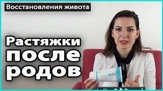 ⚠️ КАК УБРАТЬ РАСТЯЖКИ после родов | Крема от растяжек StriaSan и Pregnacare 💜 LilyBoiko