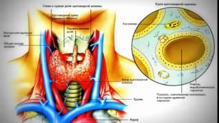 Как вылечить гипотиреоз