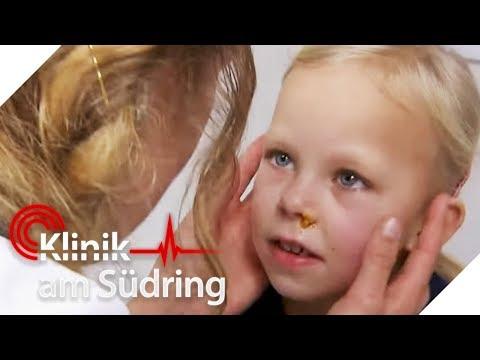 Ärger im Kindergarten: Wer hat Lillys Nase verstopft? | Klinik am Südring | SAT.1 TV
