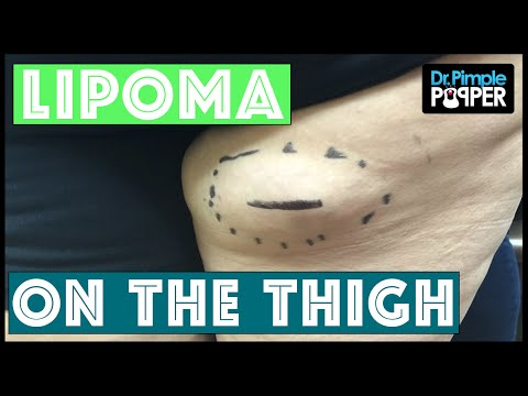 Thumbnail: A Lipoma Excised from the Right Posterior Thigh on a Popaholic's Mom!