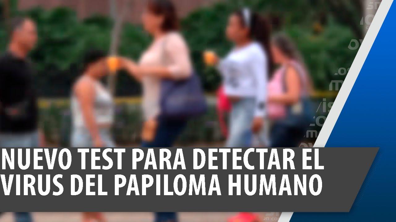 Que examen detecta el papiloma humano en mujeres
