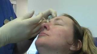 Do Botox Injections For Frown Lines and Wrinkles Hurt? How Painful is The Treatment? Thumbnail
