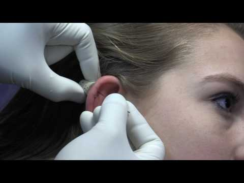 How a Double Helix Ear Cartilage is Pierced