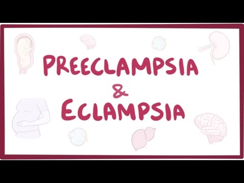 Preeclampsia & Eclampsia - Causes, Symptoms, Diagnosis, Treatment, Pathology