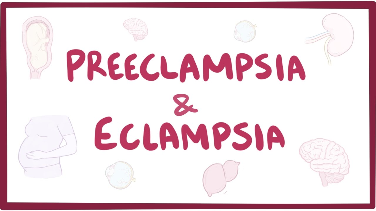 pre eclampsia and eclampsia disorders in pregnant Eclampsia, a life-threatening complication of pregnancy eclampsia is a condition that causes a pregnant woman, usually previously diagnosed with preeclampsia (high blood pressure and protein in the urine), to develop seizures or coma.