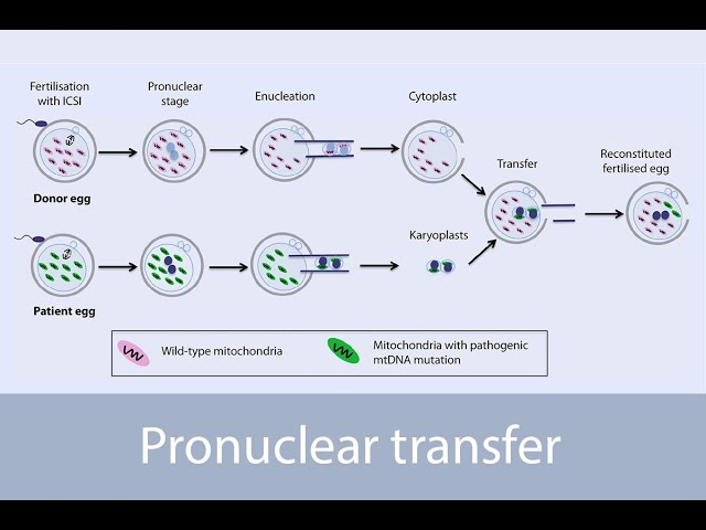 Pronuclear transfer as alternative to egg donation