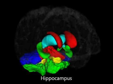Poliklinika Harni - Gestacijska dob pri rođenju povezana s volumenom mozga u dobi od 10 godina