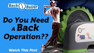 Do you need a Back Operation???