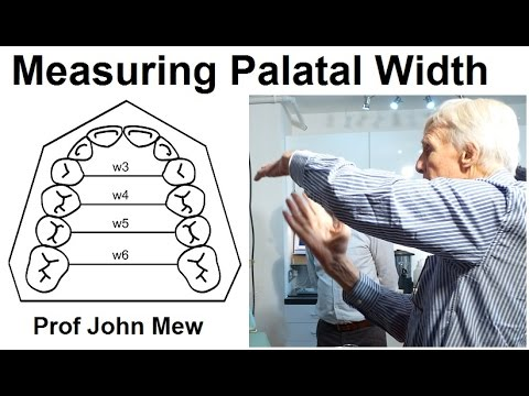 Measuring The Width Of The Upper Jaw Palate Maxilla In