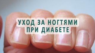 Уход за ногтями при диабете