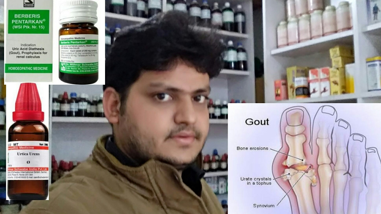 gout!increased uric acid and homeopathic medicine explain??