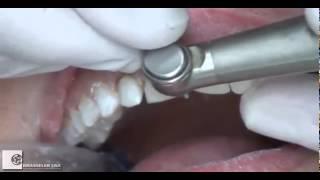 Препаровка зубов под виниры