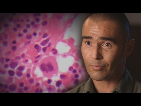Vitamin C for cancer? Miracle man Anton Kuraia's highly controversial treatment