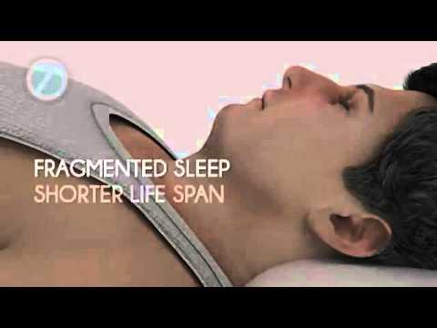 Sleep Apnea Treated With a Dental Appliance