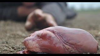 En İlginç 10 Organ Nakli 2017 Video