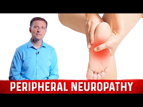 How to Relieve Peripheral Neuropathy