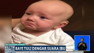 Viral Tuli Sejak Lahir Seorang Bayi Menangis Mendengar Ibunya Berujar BIS 25 10