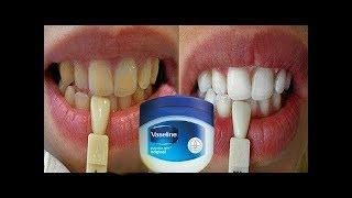 Sadece 2 Dakika içinde - Sarı Dişlerinizi Parlak İnci Beyazına Dönüştürün, Evde Diş Beyazlatma