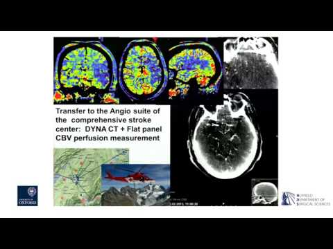 Oxford University surgical lectures: thrombectomy for acute stroke