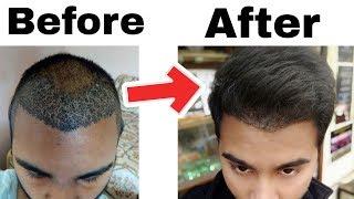 My 4 Months Hair Transplant Result Timeline || Best Hair Transplant Result In India