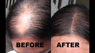 $4 MAKEUP: HOW TO GET A SCALP LINE OR NATURAL PART FOR THIN HAIR