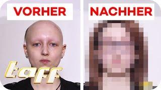 Antonia (19) hat extremen Haarausfall - Kann man ihr helfen? |SOS - Einsatz der Beauty-Retter | taff