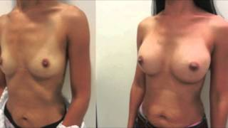 Repeat youtube video Before and After Breast Augmentation Images Performed by Top Plastic Surgeon Dr. Joshua B. Hyman