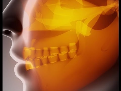 Mayo Clinic Study on Relieving Face Pain.