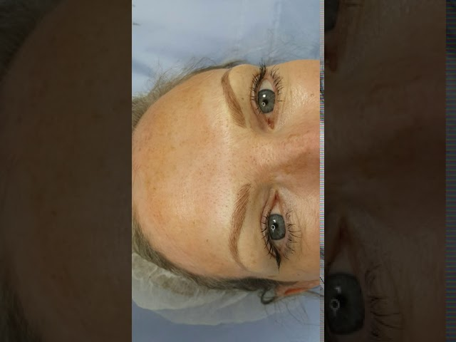 Blonde Alopecia Eyebrows Microblading by El Truchan @ Perfect Definition in London