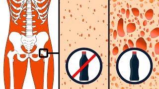 9 beliebte Lebensmittel, die deinen Körper zerstören können