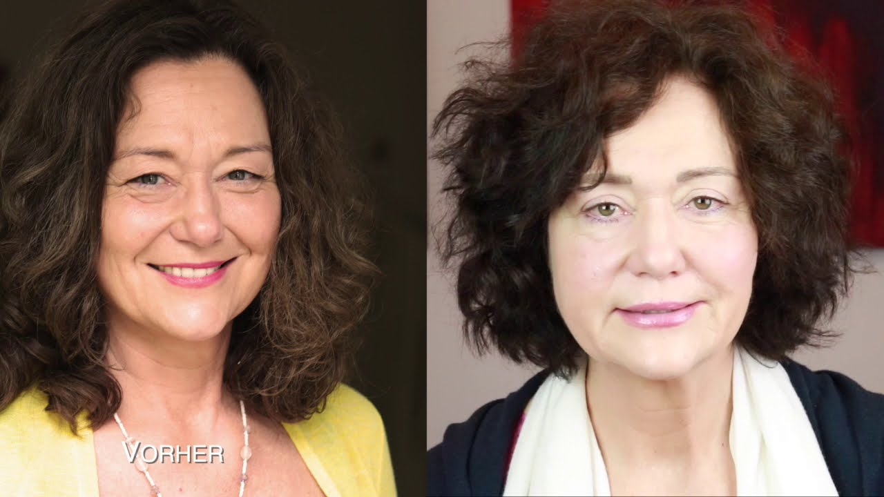Erfahrungsbericht Lidstraffung OP von Frau Lehnen bei Dr. Parasta