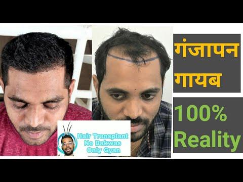How to Grow Hair only in 5 Month by Hair Transplant Surgery in DELHIKaynak: YouTube · Süre: 6 dakika