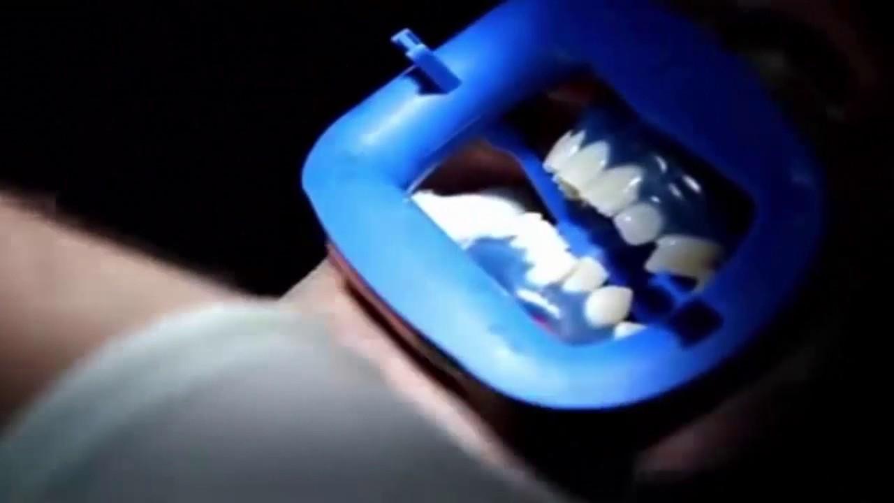 Proses Memutihkan Gigi Bleaching Di Dokter Gigi Youtube