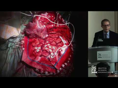 Personalized Brain Surgery and Preservation of Function - Zvi Ram, MD