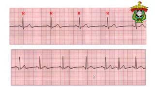 latihan interpretasi EKG Dasar Syahrul Ningrat