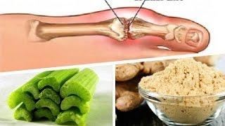 acido urico valores altos acido urico 8.1 mg dl medicina natural para acido urico colesterol