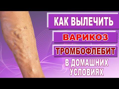 Лечение варикоза вен на ногах и тромбофлебита в домашних условиях