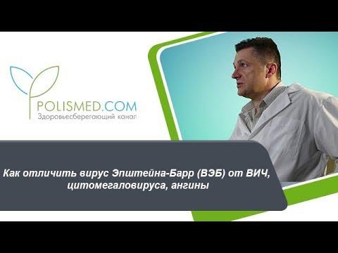 Цитомегаловирус — симптомы и лечение цитомегаловируса