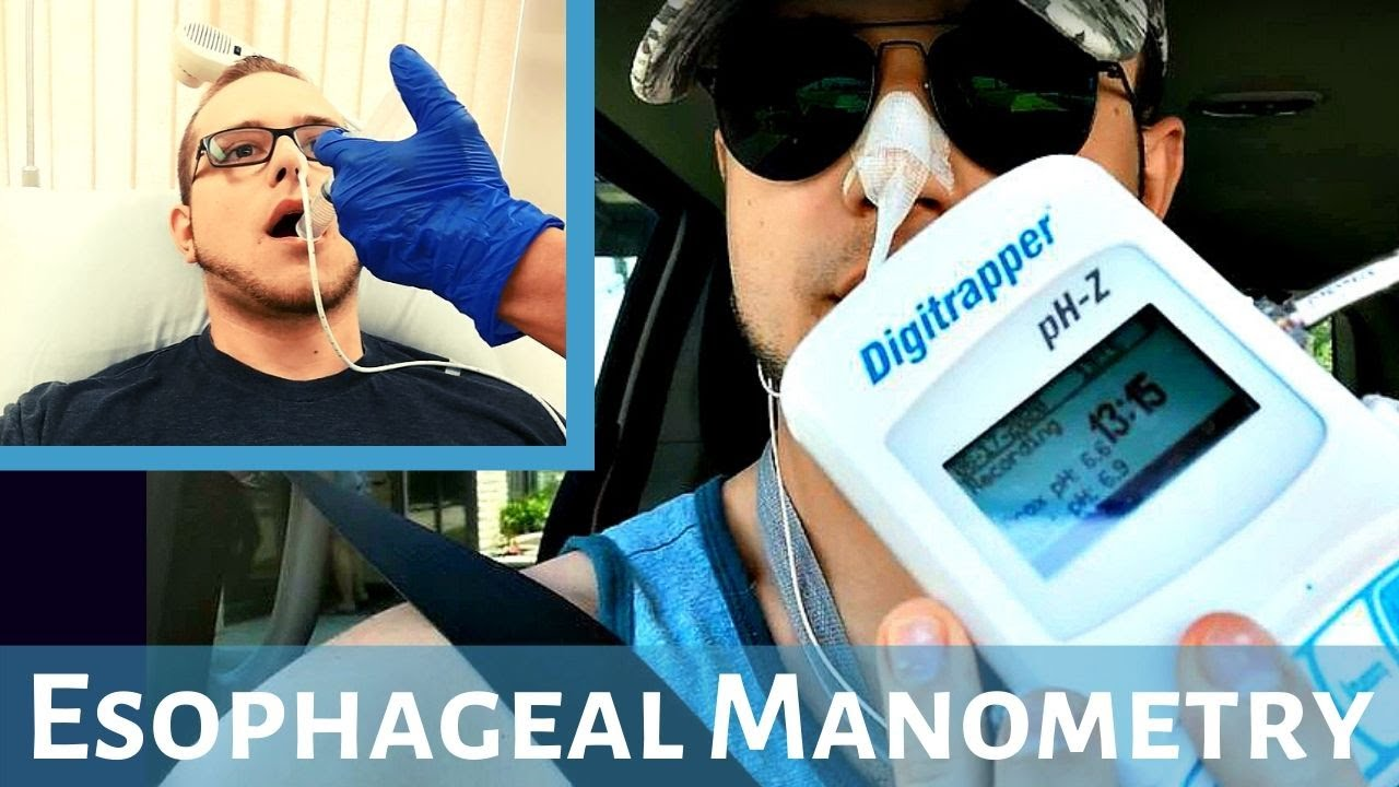 Esophageal Manometry Test (My Experience)