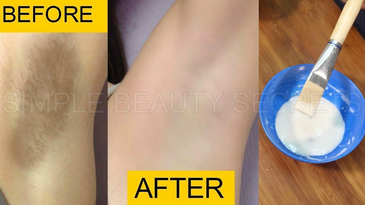 How To Lighten Body Hair Naturally Fast