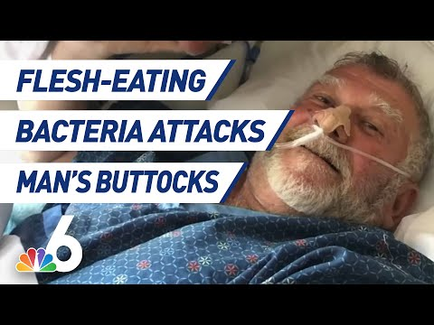 Kevin Campbell - Florida Man Recovering After Flesh Eating Bacteria Attacks His Butt