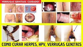 Herpes, HPV e Verrugas Genitais - Glizigen Funciona