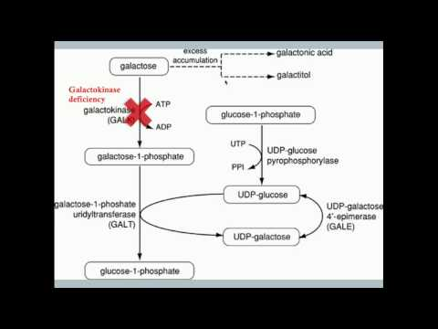 Disorders of Fructose and Galactose Metabolism - CRASH! Medical Review Series