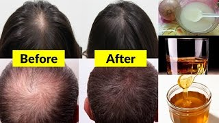 Super-fast Natural Hair Growth Treatment at Home| World Best Magical Hair Growth Treatment 100% work