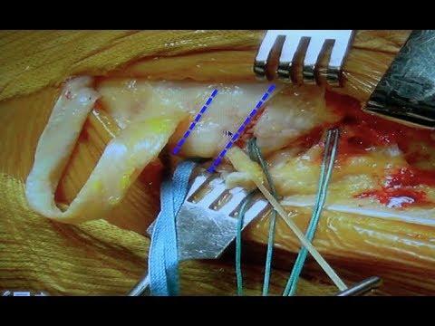 Ostéotomie tibiale de valgisation & Plastie extra-articulaire