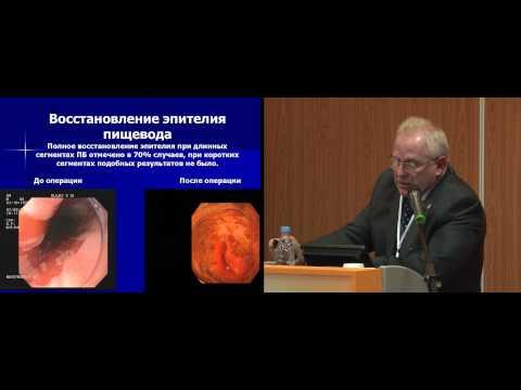 Лапароскопическое лечение гастроэзофагеальной рефлюксной болезни, осложненной пищеводом Барретта