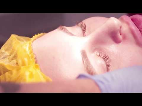 Как делают блефаропластику верхних век видео