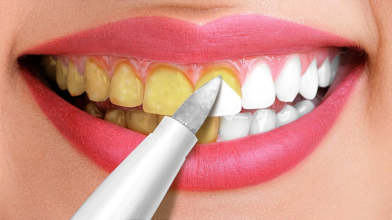 Download 30 Amazing Hacks For A White Smile || Beauty Tricks and Tips
