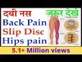 Back Pain, दवी हुए नस, Slip Disc, Hips Pain का जड़ से सफल इलाज़ | सालो साल पुराना कमर दर्द