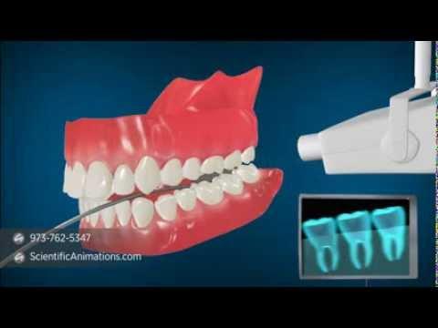 Medical Animation explaining Dental Radiography | Dental X-Rays
